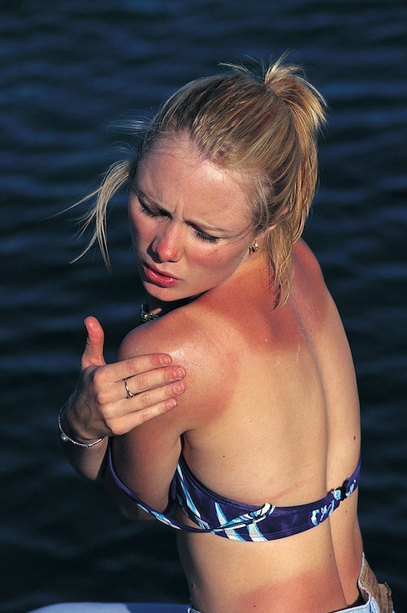 Sunburn and Heat Stroke