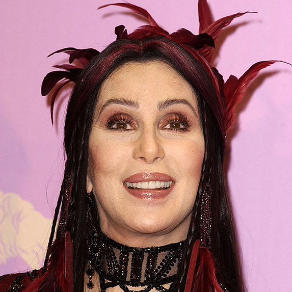 Cher teeth 2016