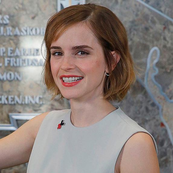 Emma Watson teeth now