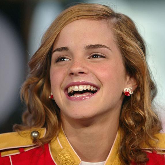 Emma Watson old teeth