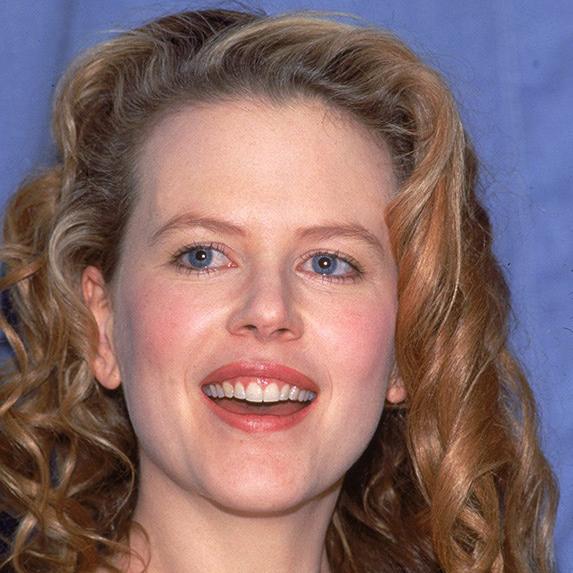Nicole Kidman teeth 1989