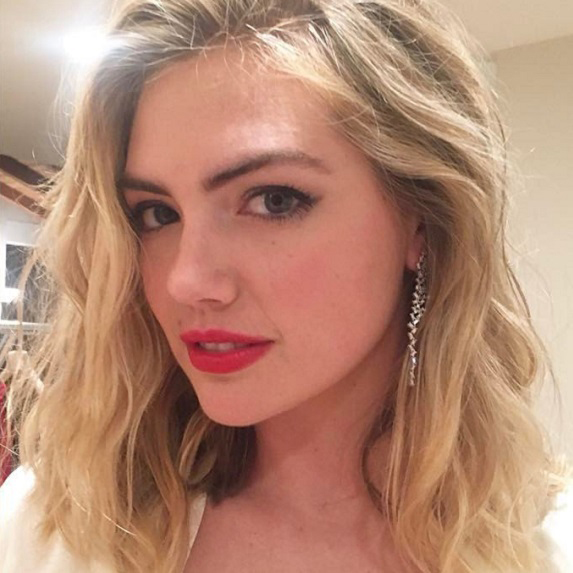 After: Kate Upton