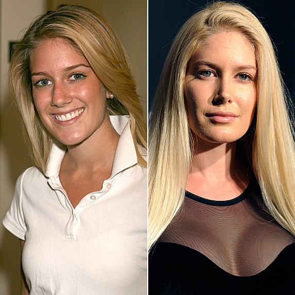 Heidi Montag in 2006 and 2012