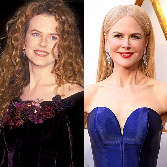Nicole Kidman jaw surgery