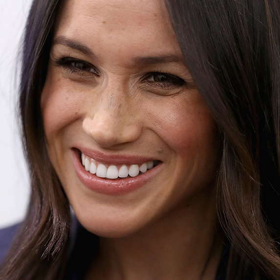 meghan markle laughing with freckles visible on her nose and cheeks