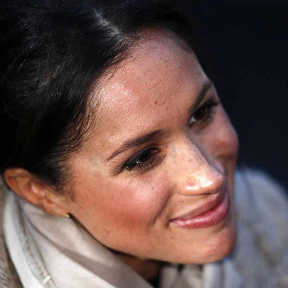 meghan markle closeup with freckles and moles visible
