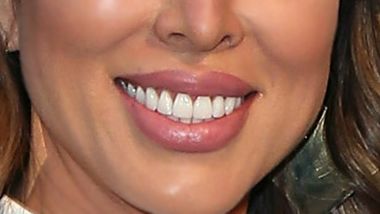 Quiz: Can You Guess Which Real Housewives City These Lips Are From?