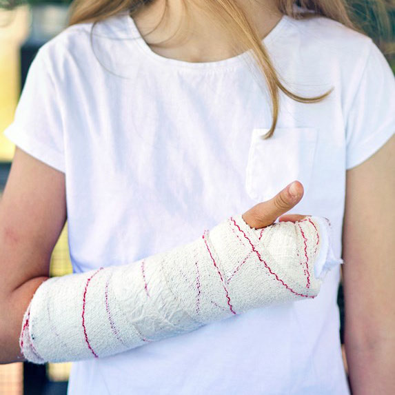 a young girl's broken arm in a cast