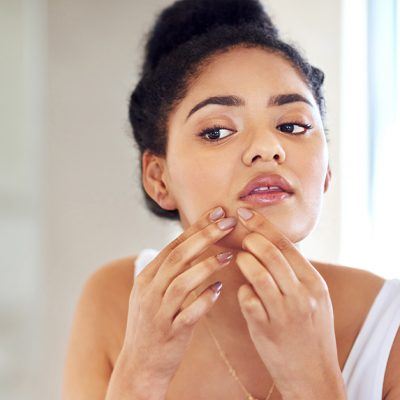 Acne is caused by poor hygiene