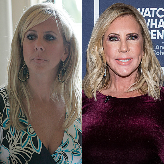 Vicki Gunvalson in 2007; and in 2018