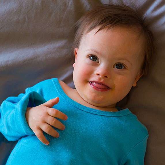 Adorable smiling baby boy with Down's Syndrome laying on his back and smiling