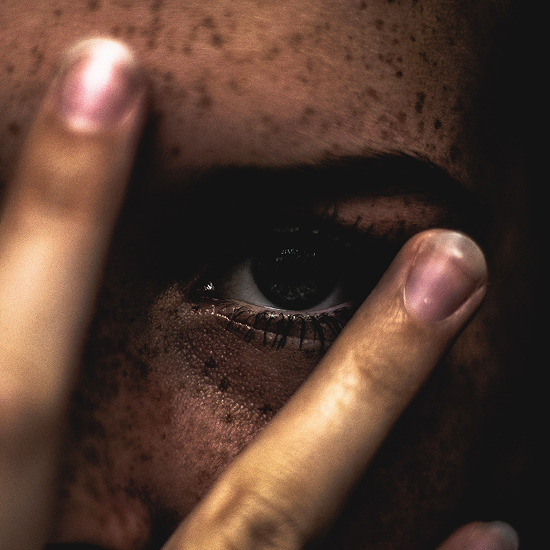 A woman with freckles hiding behind fingers with her eye peeking through
